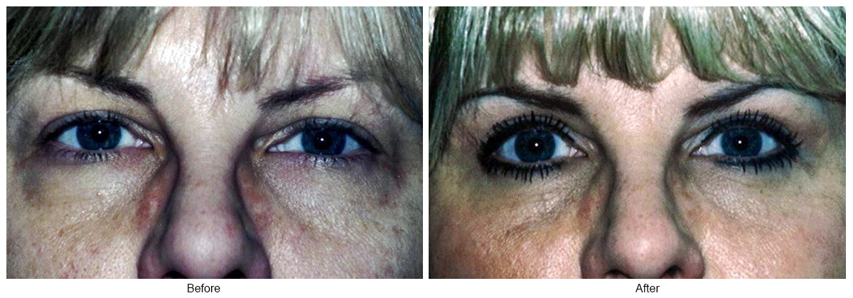 Orange County Cosmetic Surgery Clinique Before & After Eyelid Surgery 3