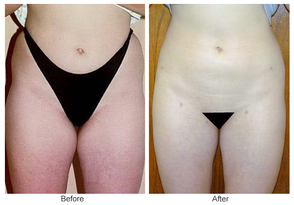 Orange County Cosmetic Surgery Clinique Before & After Liposuction 4 - Front