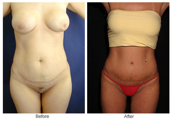 Orange County Cosmetic Surgery Clinique Before & After Liposuction 5 - Front