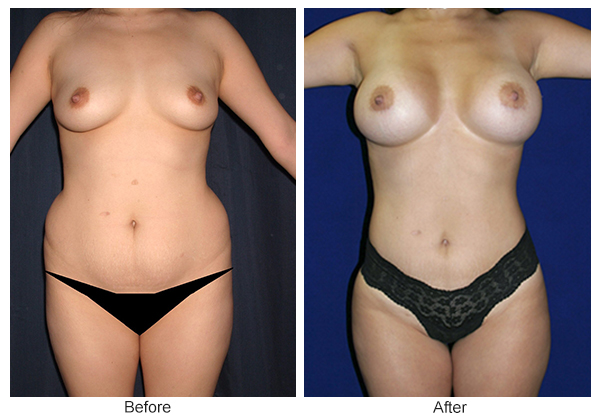 Orange County Cosmetic Surgery Clinique Before & After Mommy Makeover 3 - Front