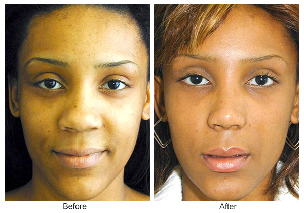 Orange County Cosmetic Surgery Clinique Before & After Rhinoplasty 1 - Front