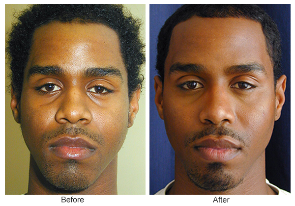 Orange County Cosmetic Surgery Clinique Before & After Rhinoplasty 13 - Front
