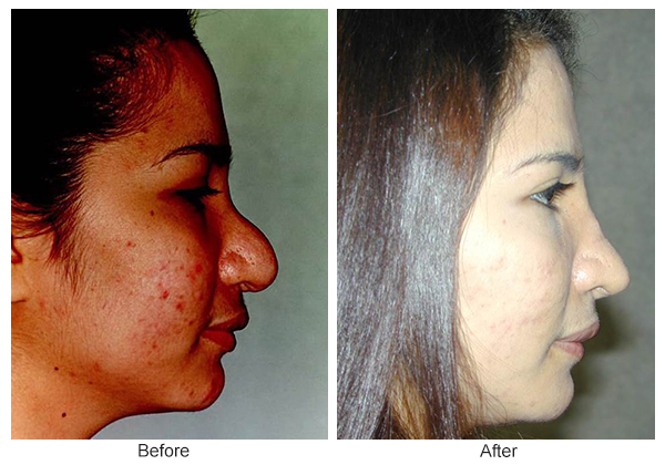 Orange County Cosmetic Surgery Clinique Before & After Rhinoplasty 14 - Right
