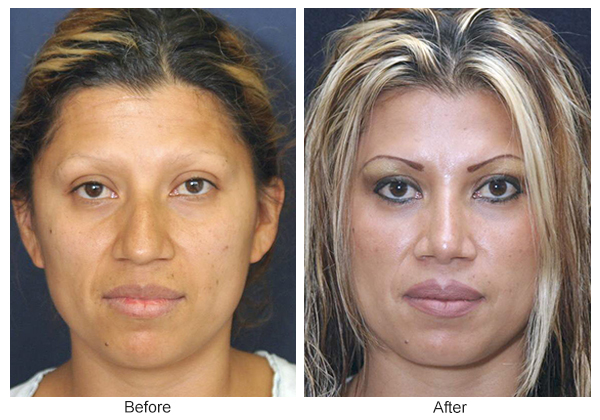 Orange County Cosmetic Surgery Clinique Before & After Rhinoplasty 4 - Front