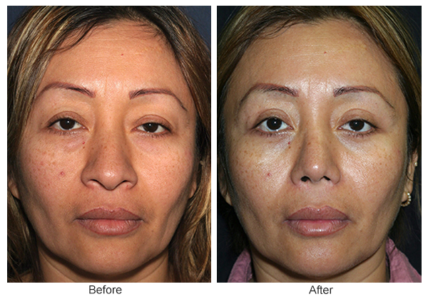 Orange County Cosmetic Surgery Clinique Before & After Rhinoplasty 6 - Front