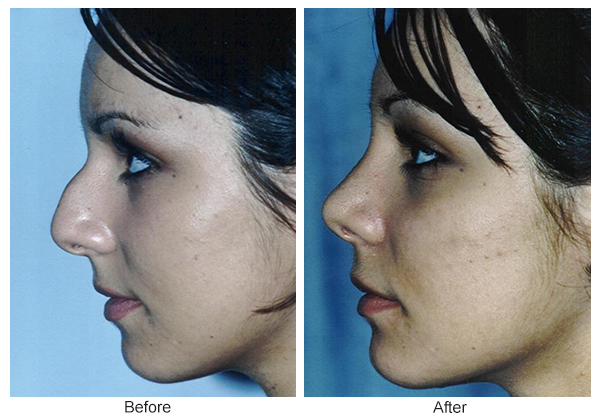 Orange County Cosmetic Surgery Clinique Before & After Rhinoplasty 9 - Left
