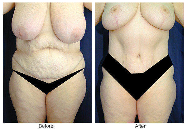 Orange County Cosmetic Surgery Clinique Before & After Tummy Tuck 10 - Front