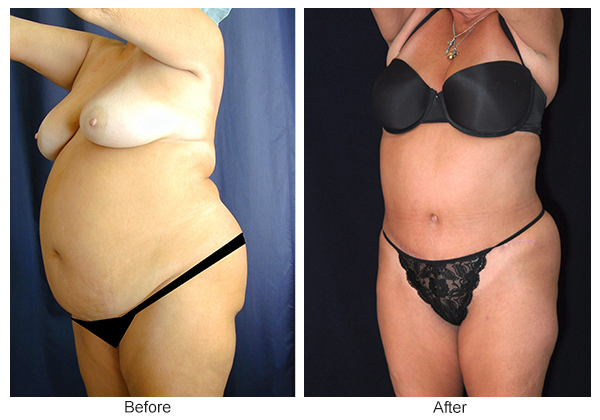 Orange County Cosmetic Surgery Clinique Before & After Tummy Tuck 3 - Left Quarter
