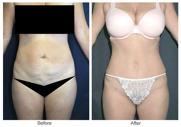 Orange County Cosmetic Surgery Clinique Before & After Tummy Tuck 6 - Front