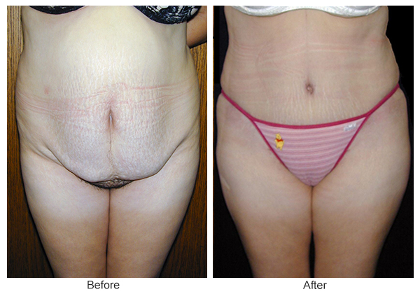 Orange County Cosmetic Surgery Clinique Before & After Tummy Tuck 9 - Front